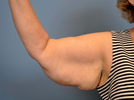 After Weight Loss Surgery Patient Has Arm Liposuction And Arm Lift