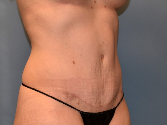 Right Angle - Abdominoplasty After