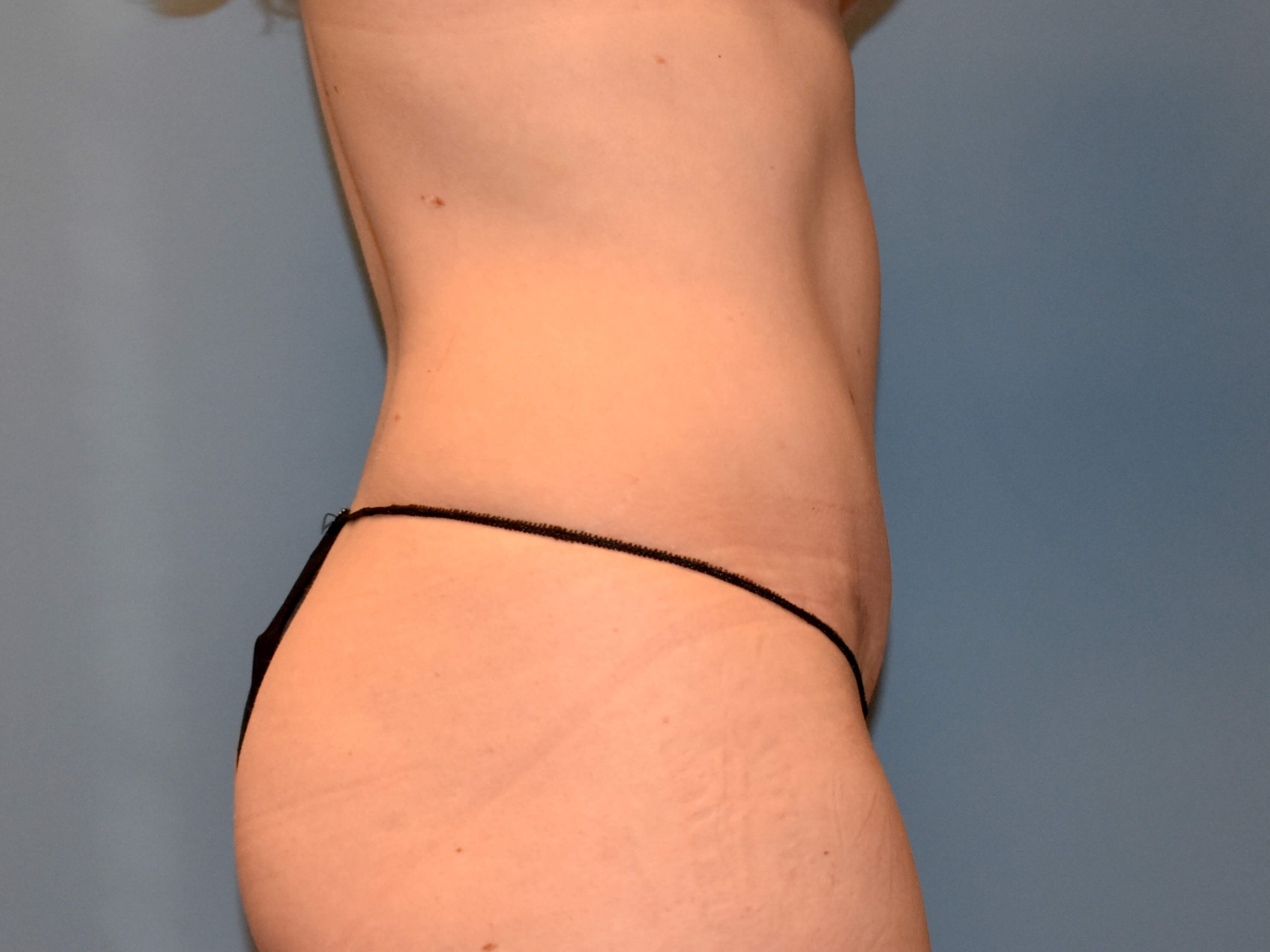 Right Side - Abdominoplasty After