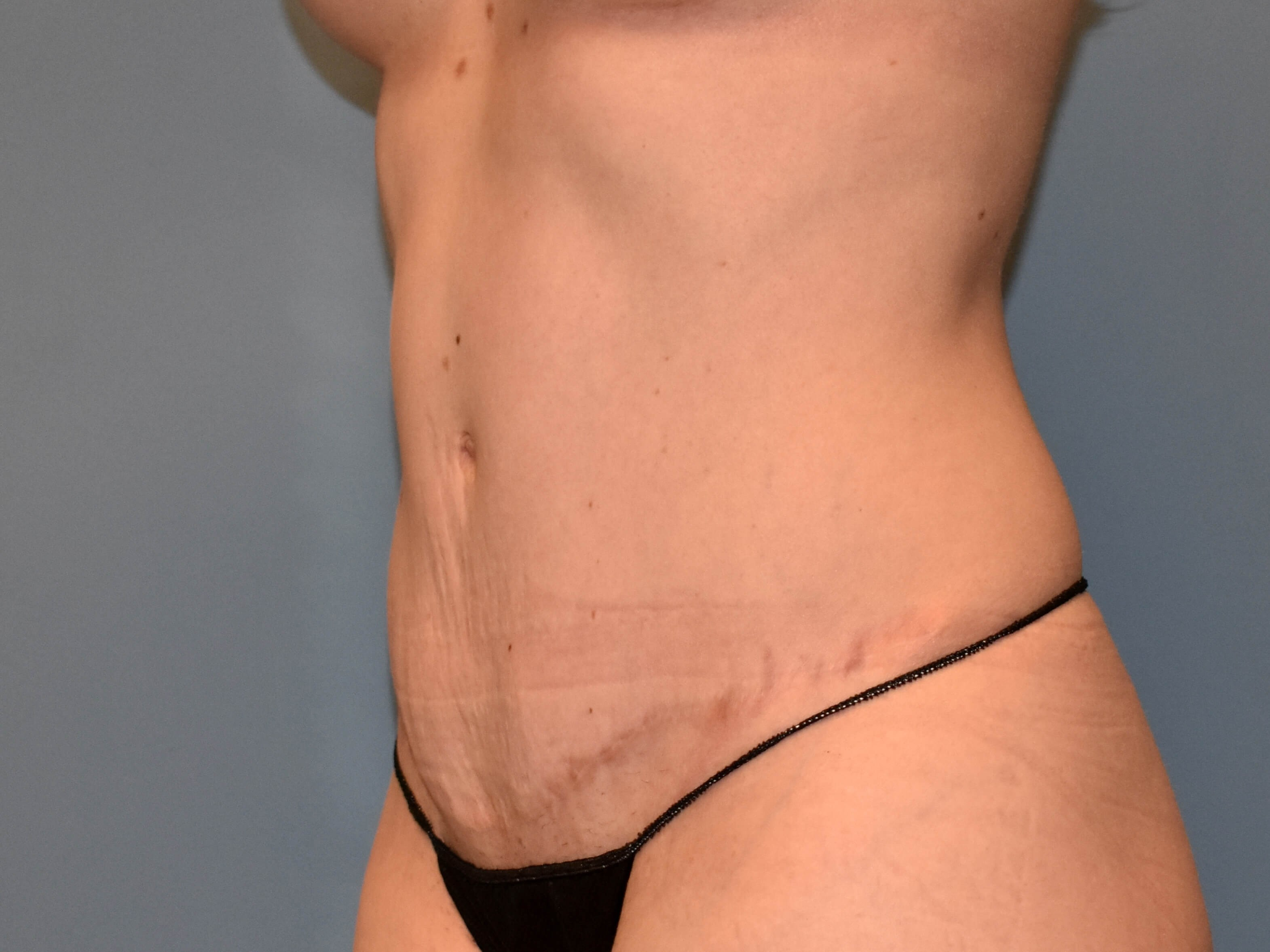 Left Angle - Abdominoplasty After