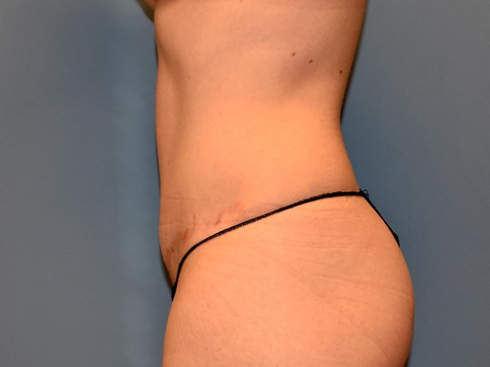 Left Side - Abdominoplasty After