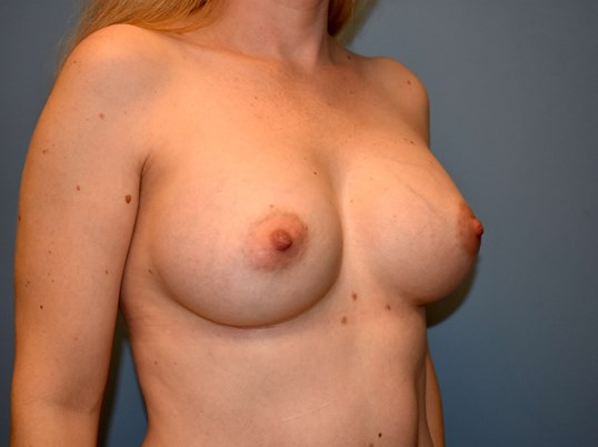 Right Angle - Breasts After