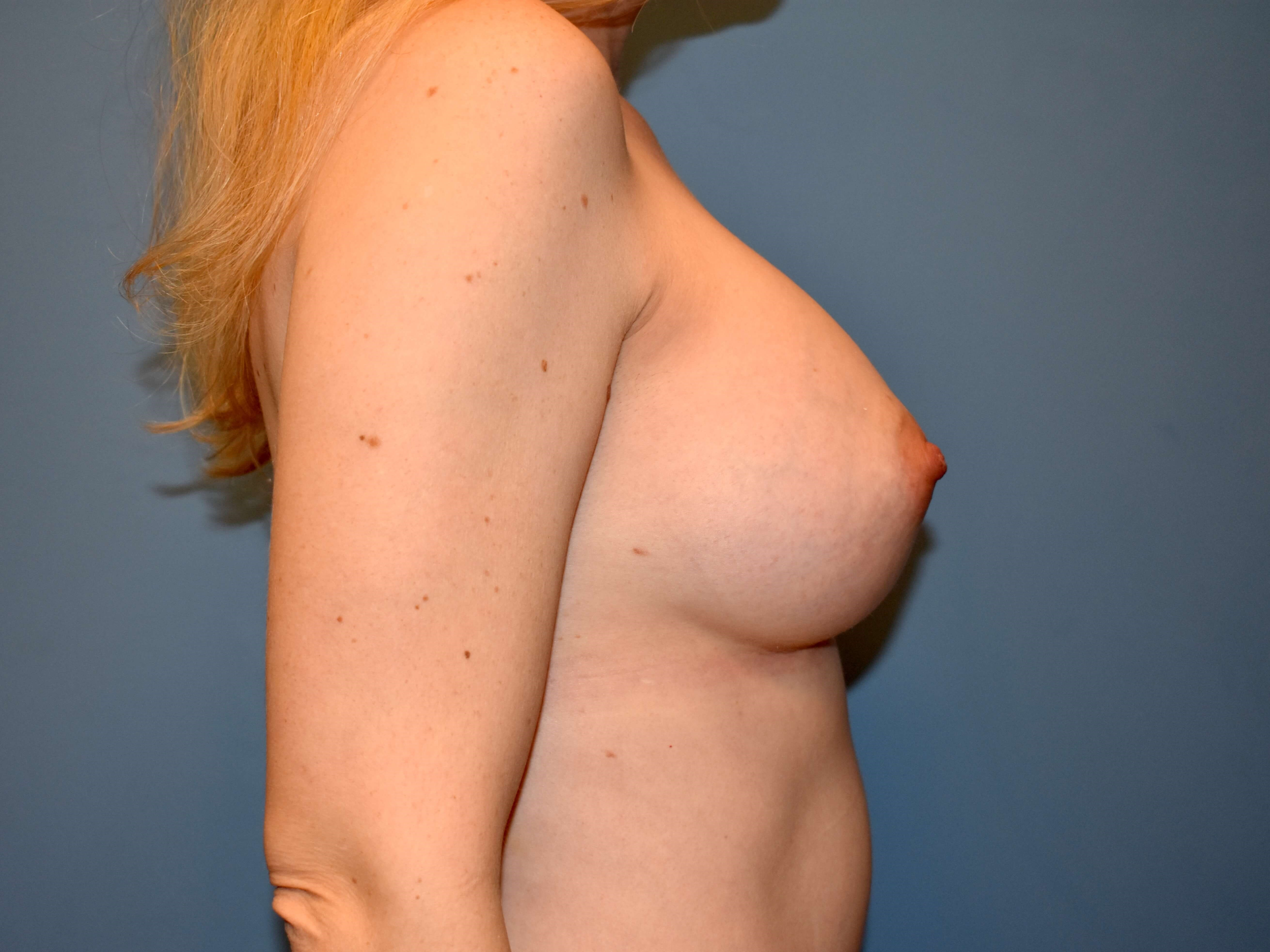 Right Side - Breasts After