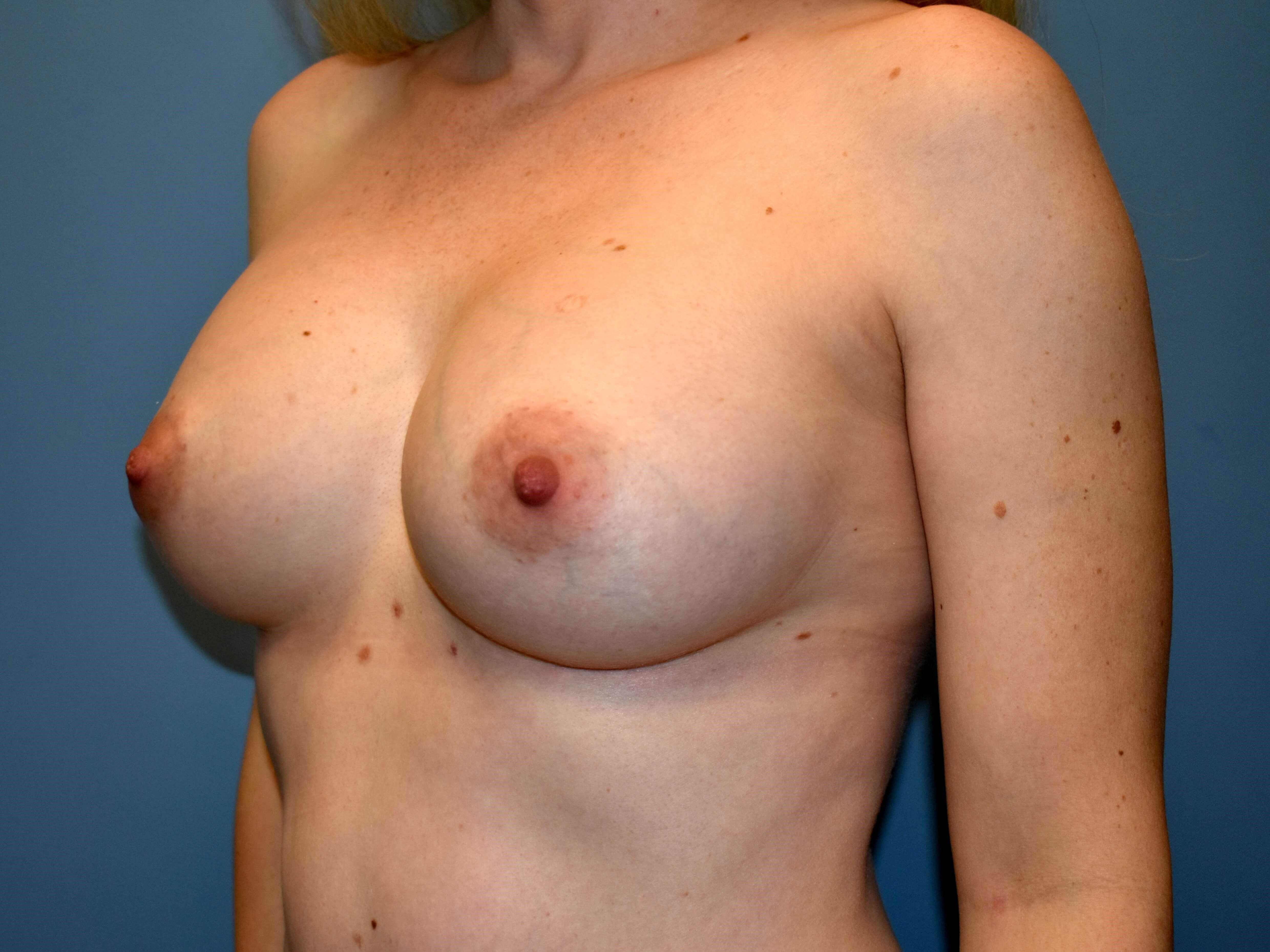 Left Angle - Breasts After