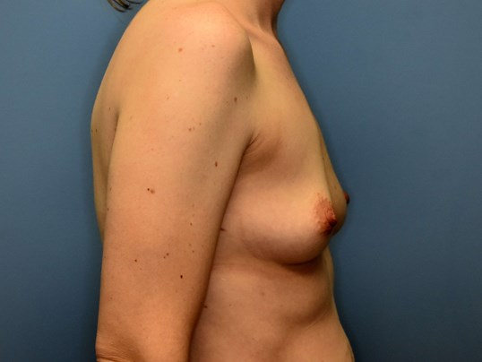 Right Side - Breasts Before