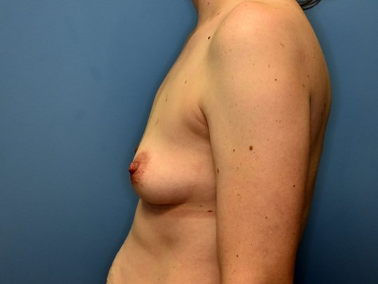 Left Side - Breasts Before