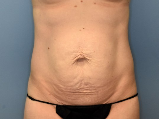 Front View - Abdominoplasty Before