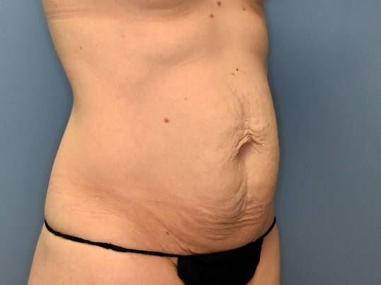 Right Angle - Abdominoplasty Before