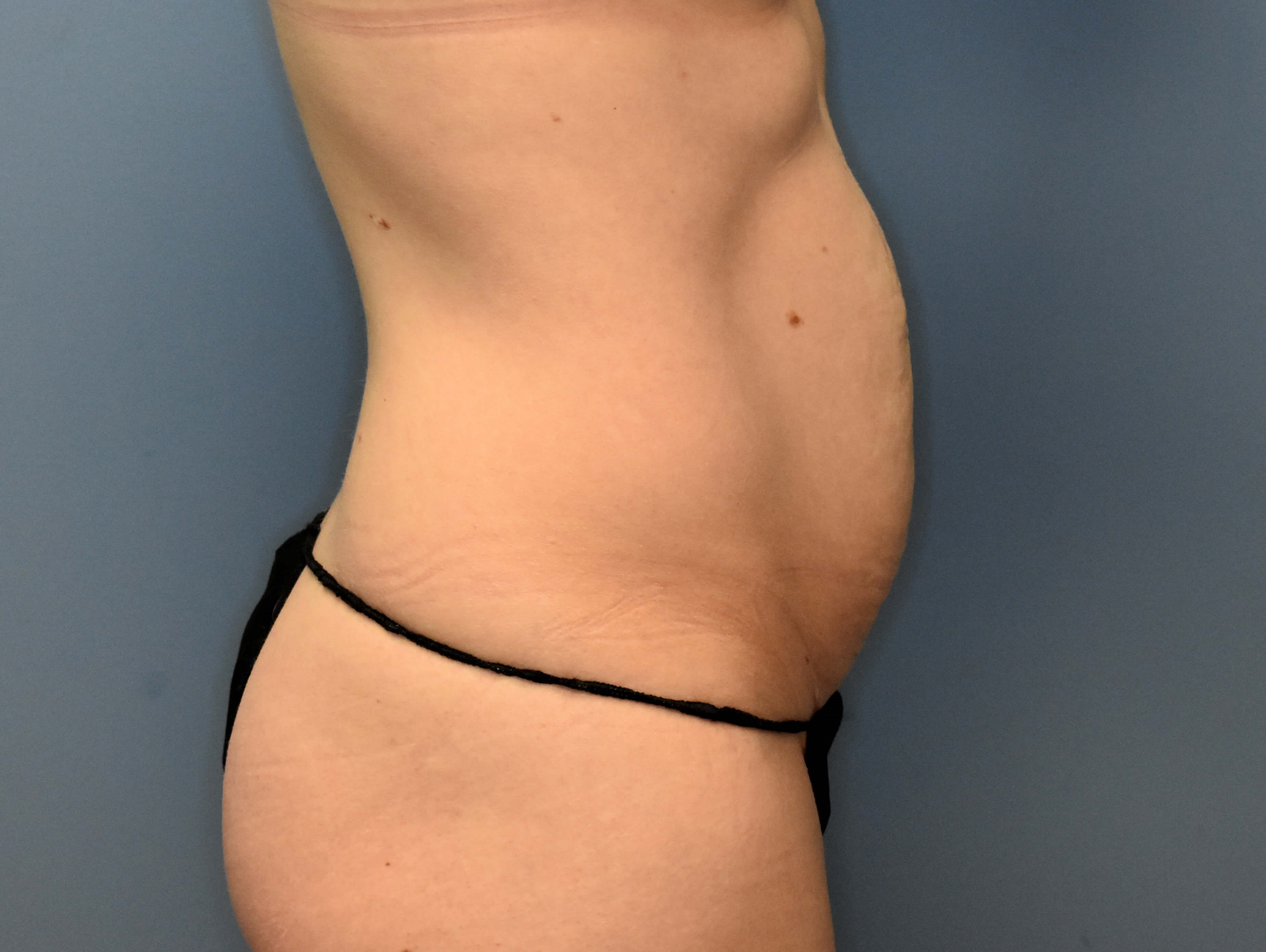 Right Side - Abdominoplasty Before