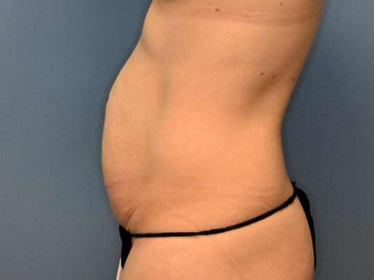 Left Side - Abdominoplasty Before