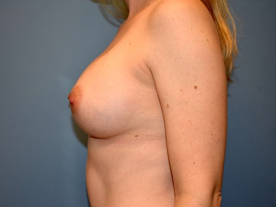 Left Side - Breasts After