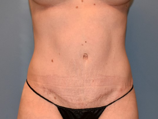 Front View - Abdominoplasty After
