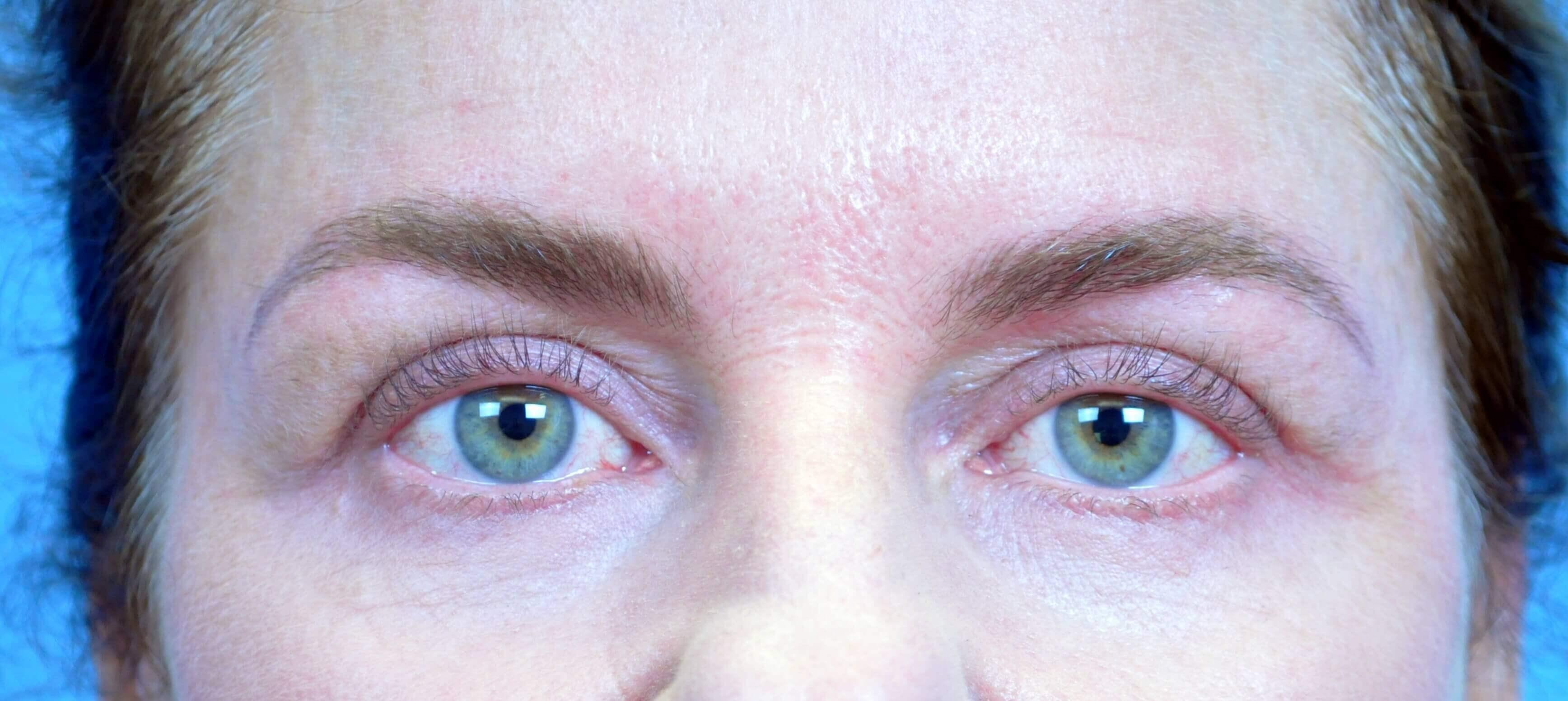 Atlanta Ga Patient Has Cosmetic Tattoo Of Eyebrows