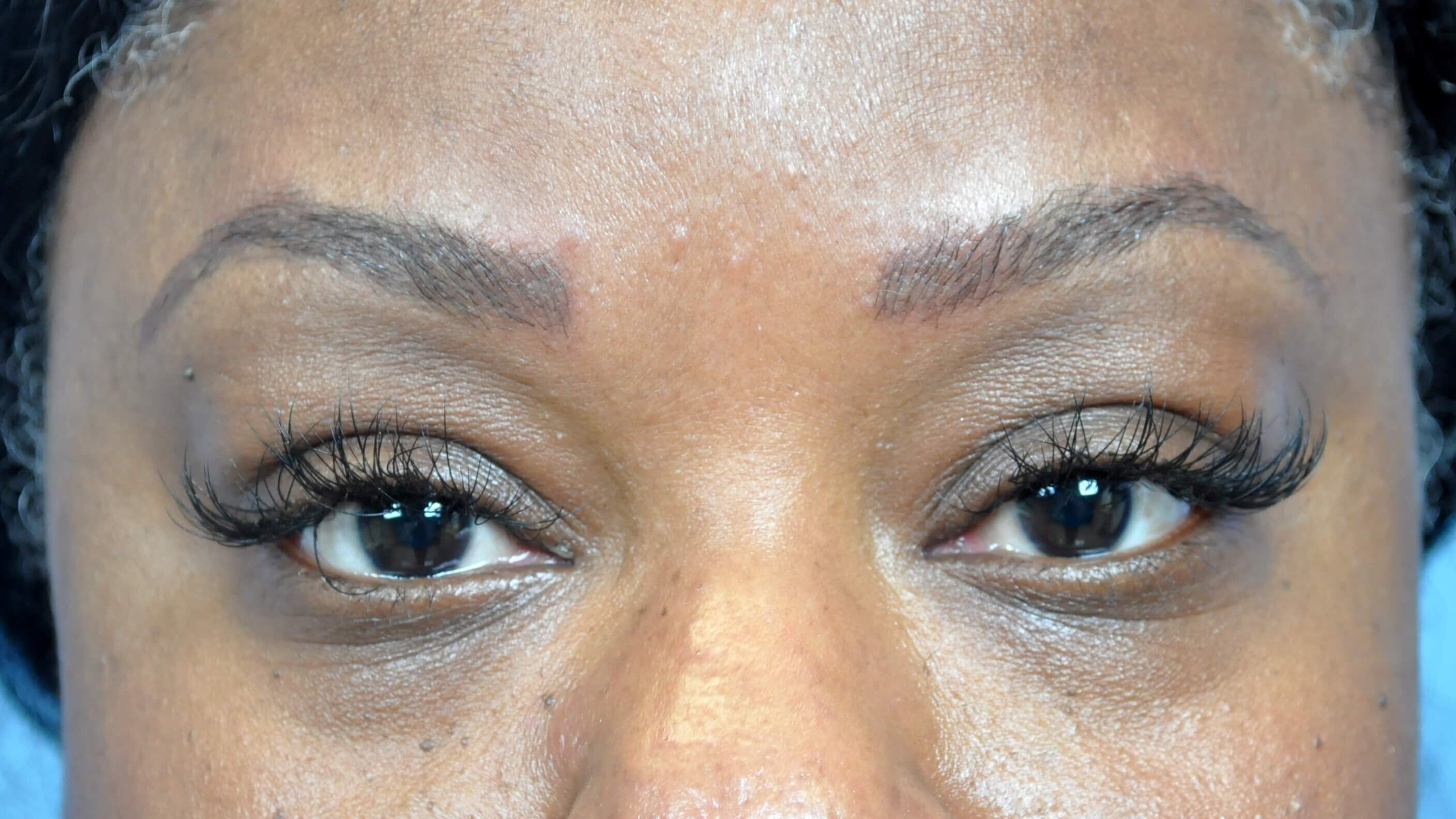 Cosmetic Tattoo Treatment On The Eyebrows For An Atlanta Ga Patient