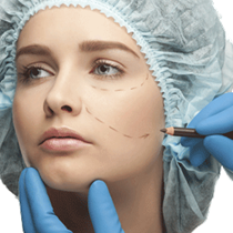 Cheek Augmentation*